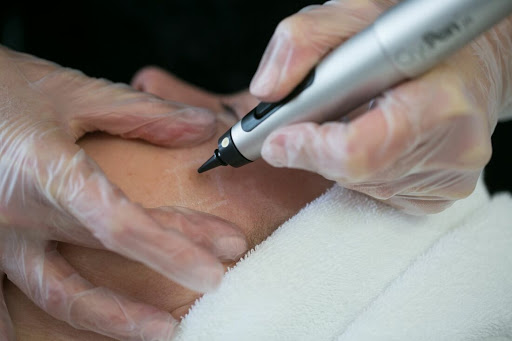 Remove Warts & Skin Tags with Cryopen technology at Nail & Beauty Clinic
